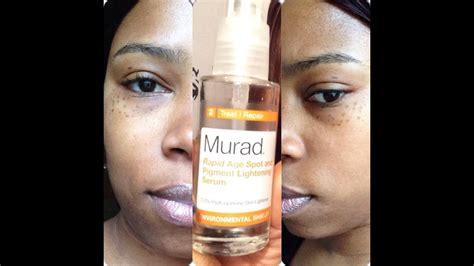 Product Review: Murad rapid Age Spot and Pigment